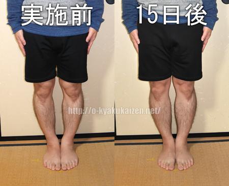 O脚エクササイズ前後比較